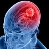 Vigyázat: a fejfájás súlyos betegségre is utalhat!